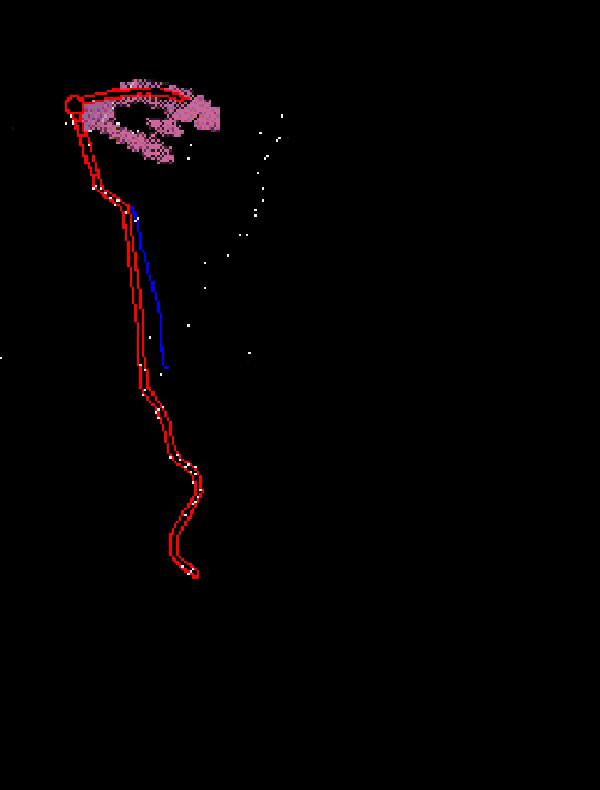 Hydrocephalus Shunt